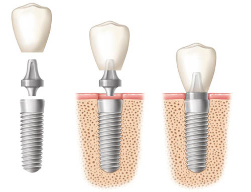 dental implant jamaica queens